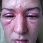 Alergická reakcia na lepidlo 3D riasy | dailymail.co.uk