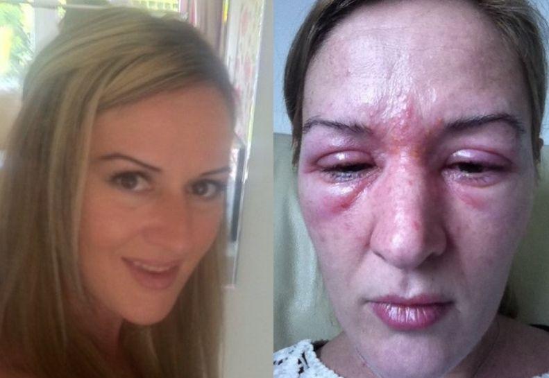 Alergická reakcia na lepidlo na umelé mihalnice | dailymail.co.uk