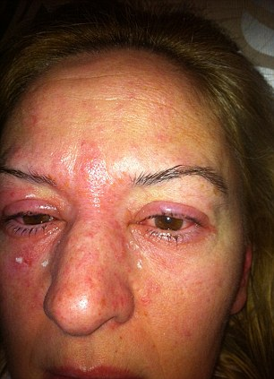 Jane Rolfe 3Dmihalnice alergická reakcia na lepidlo | dailymail.co.uk